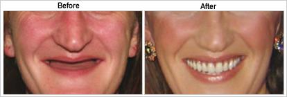 High Quality Denture Treatments