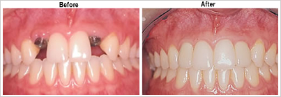 Dental Implant Teatments @ Maxident Clinic