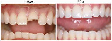 Dental Crown Treatment @ Maxident Clinic