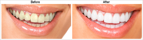 Teeth Whitening-before-after