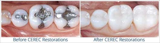 CEREC Dental Restoration At Maxident Clinic