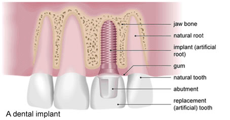 Dental Implant Treatments @ Maxident Clinic