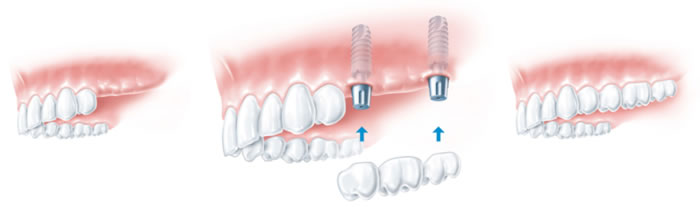 High Quality Dental Implant Treatments @ Maxident Clinic