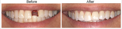single tooth implant before and after