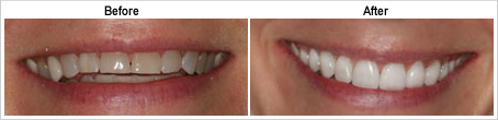 veneer-before-after