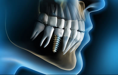 Dental Implants At Maxident Clinic